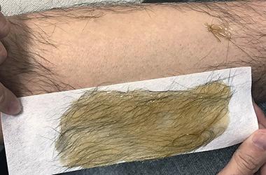 ワックスで固めて毛を引っこ抜きます