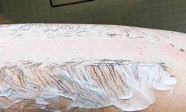 「NOLLリムーバークリーム」を脚に塗ってしばらくするとスネ毛が溶けた