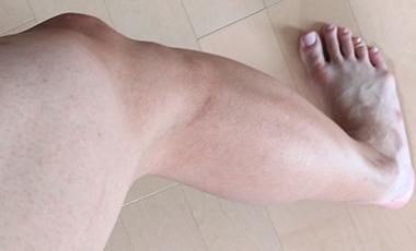 除毛クリーム「NOLLリムーバークリーム」でスネ毛がきれいになくなった脚